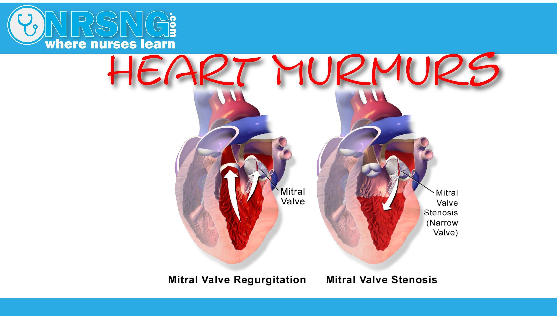Heart Murmurs Aortic/Mitral Stenosis, Regurgitation