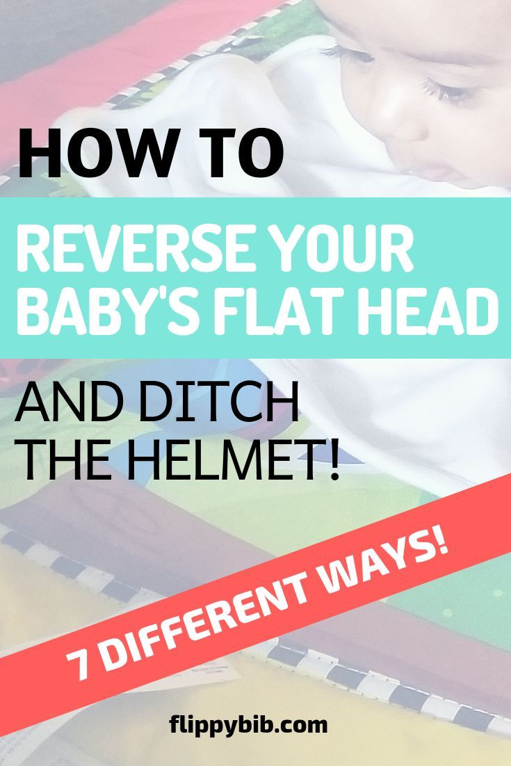 7 Unusual Tips To Prevent Flat Head Syndrome And A Baby