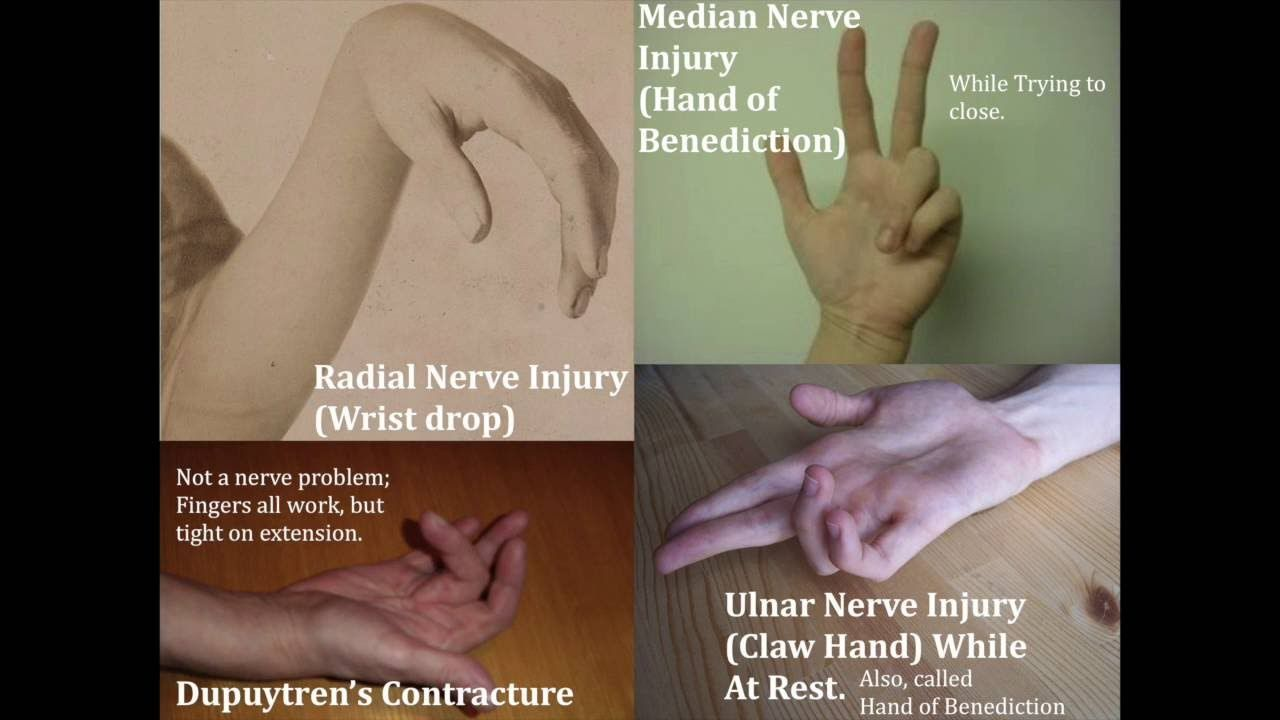 Image result for radial median and ulnar nerve lesions | Anatomy ...