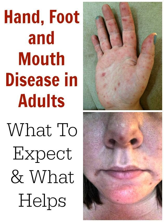 Adult hand and mouth disease