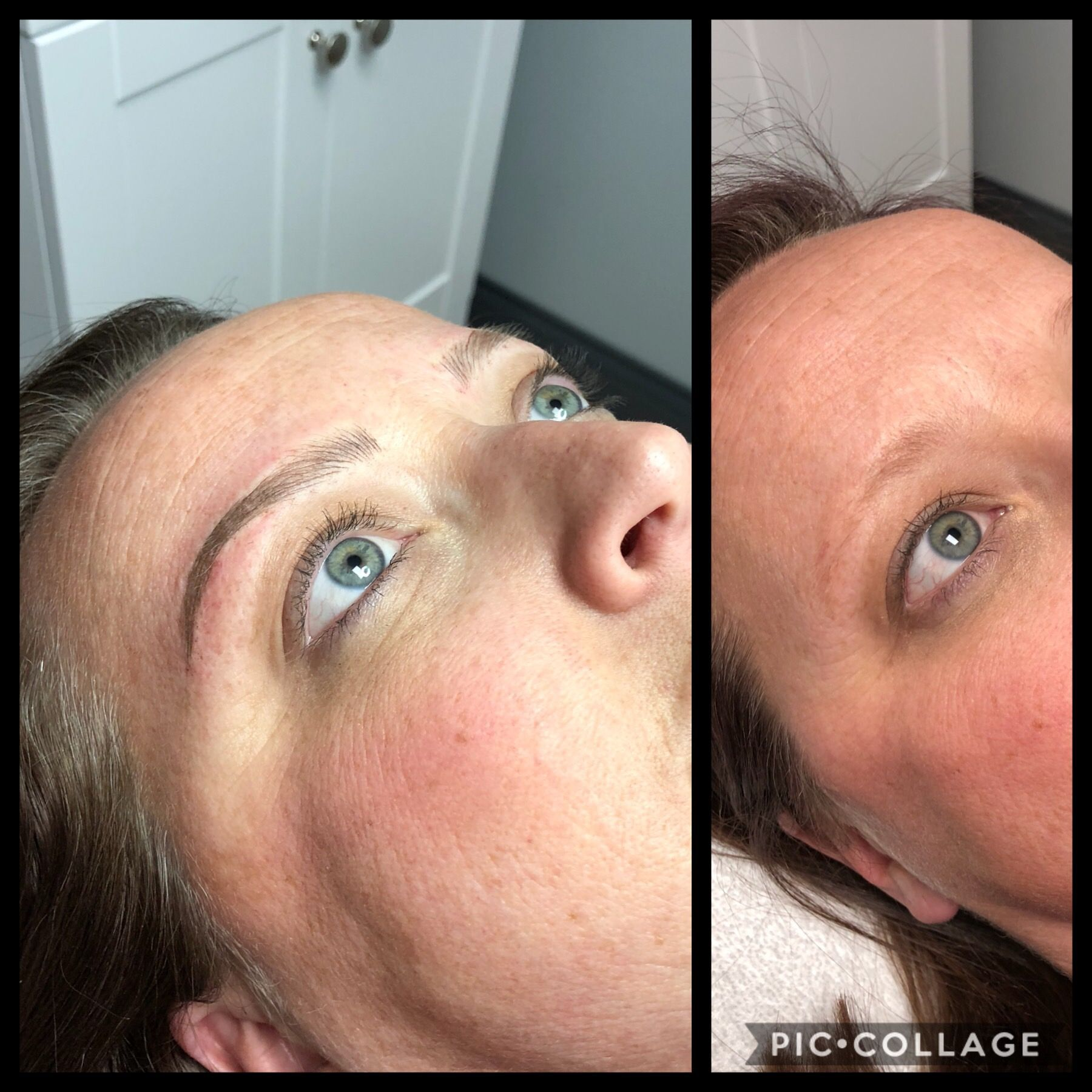 Swelling under nose piercing  Eyebrows Microblading Feather Stroke D Brows Bloomington