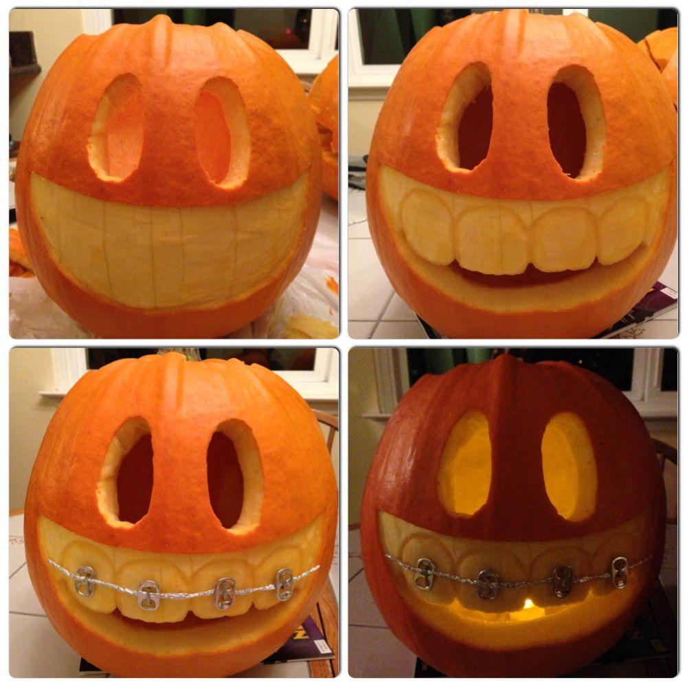 Pumpkin with braces :)  Halloween PumpkinsHalloween DecorationsHolidays ...