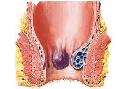 como reducir hemorroides internas