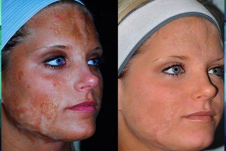 Burning facial skin
