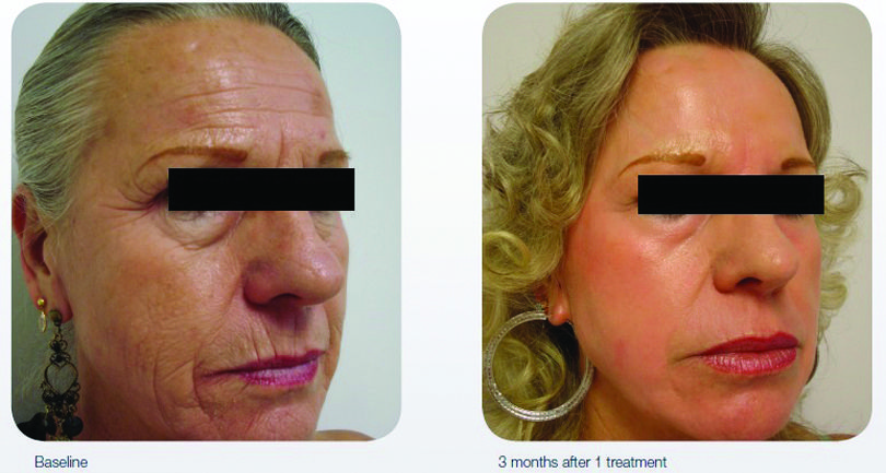 AcuPulse Skin resurfacing procedures at The Cosmetic Vein