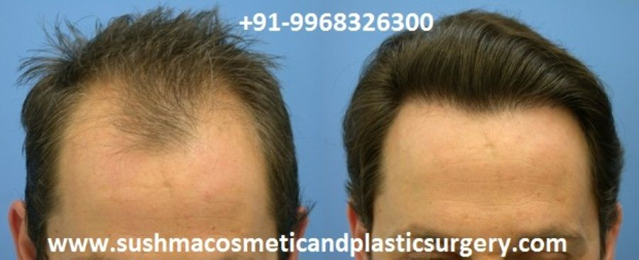 Fue Hair Transplant Surgery Dr Rajat Guptais Best Hair