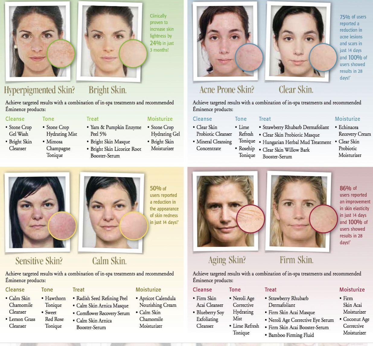 Eminence Organic Acne Skin Organic Acne Products Eminence Organic Skin Care