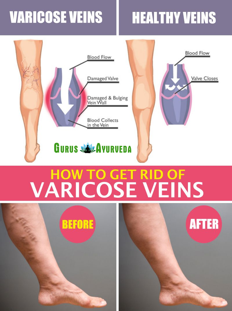 can you get rid of varicose veins