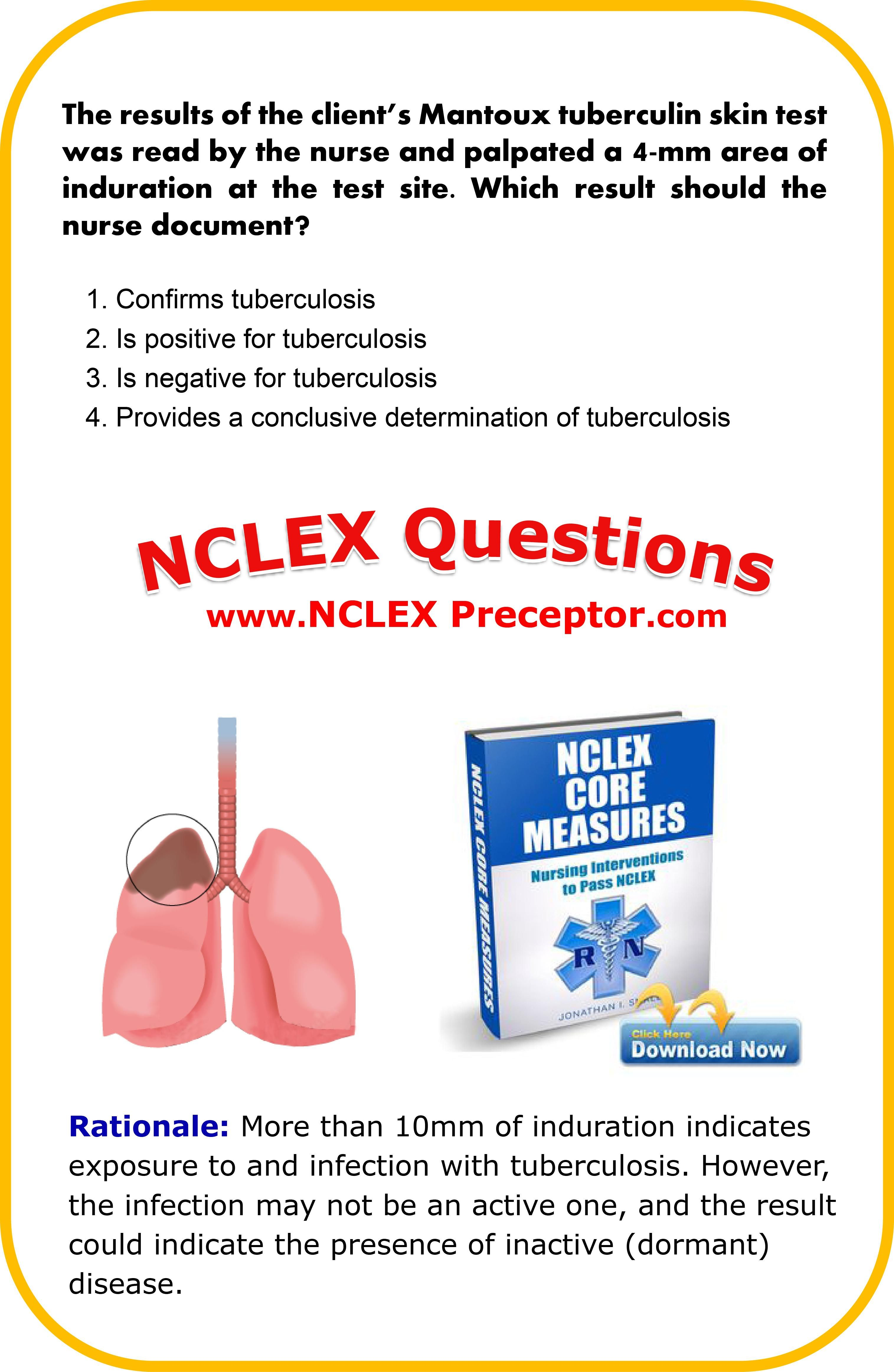 Learn nursing NCLEX interventions. Great place to get FREE practice NCLEX questions for student nurses. www.nclexpreceptor.com