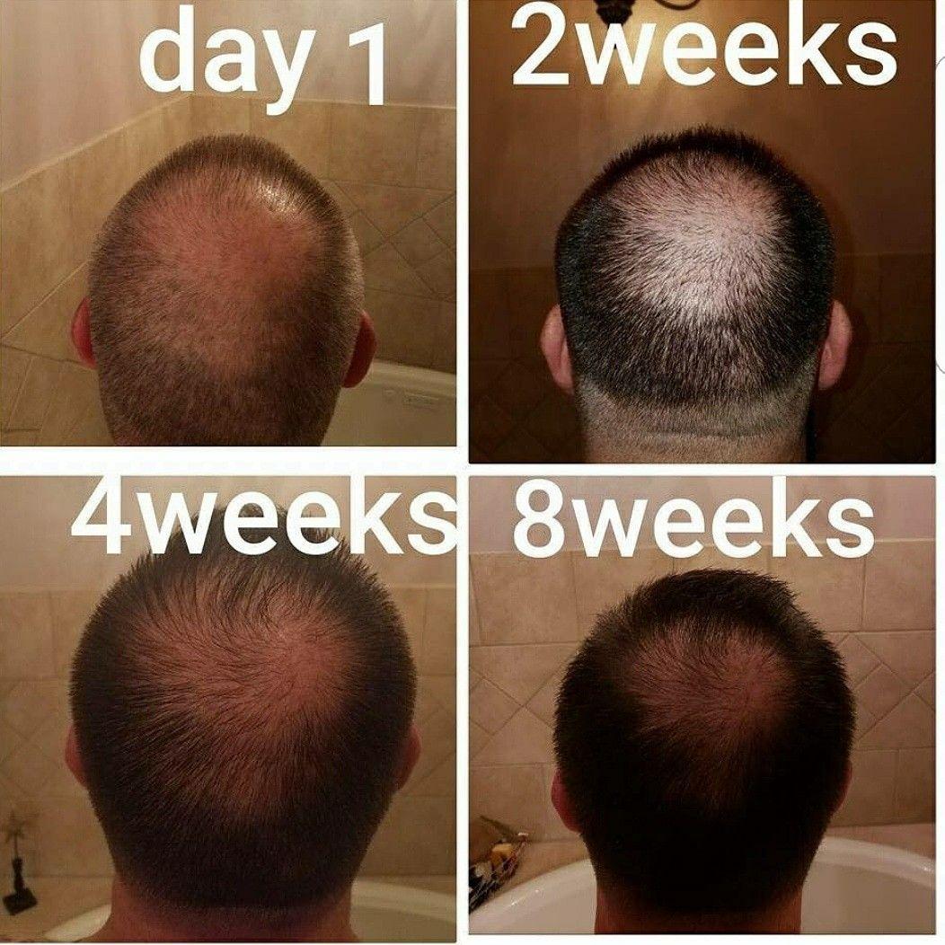 Pin By Maria Kelly Hayes On Men Of Monat Hair Loss Remedies