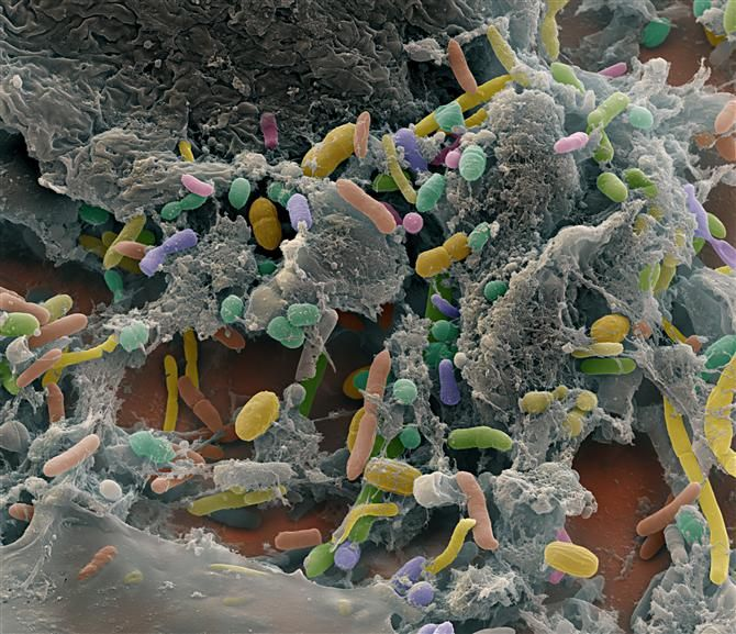 Intestinal Bacteria - The human intestine contains hundreds of differend kinds of bacteria. Almost looks pretty.