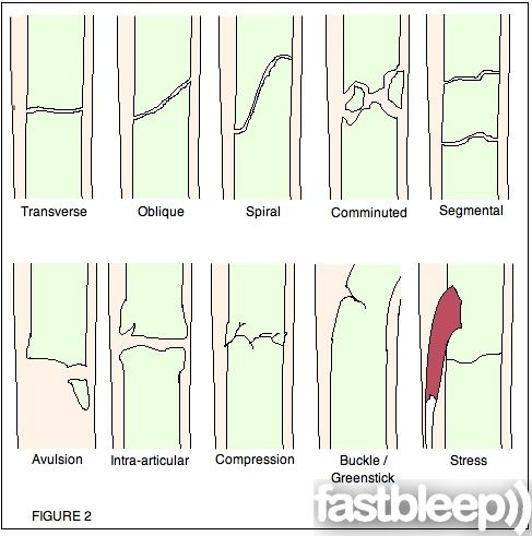 Different Types Of Hip Fractures Fracture See Image Below For