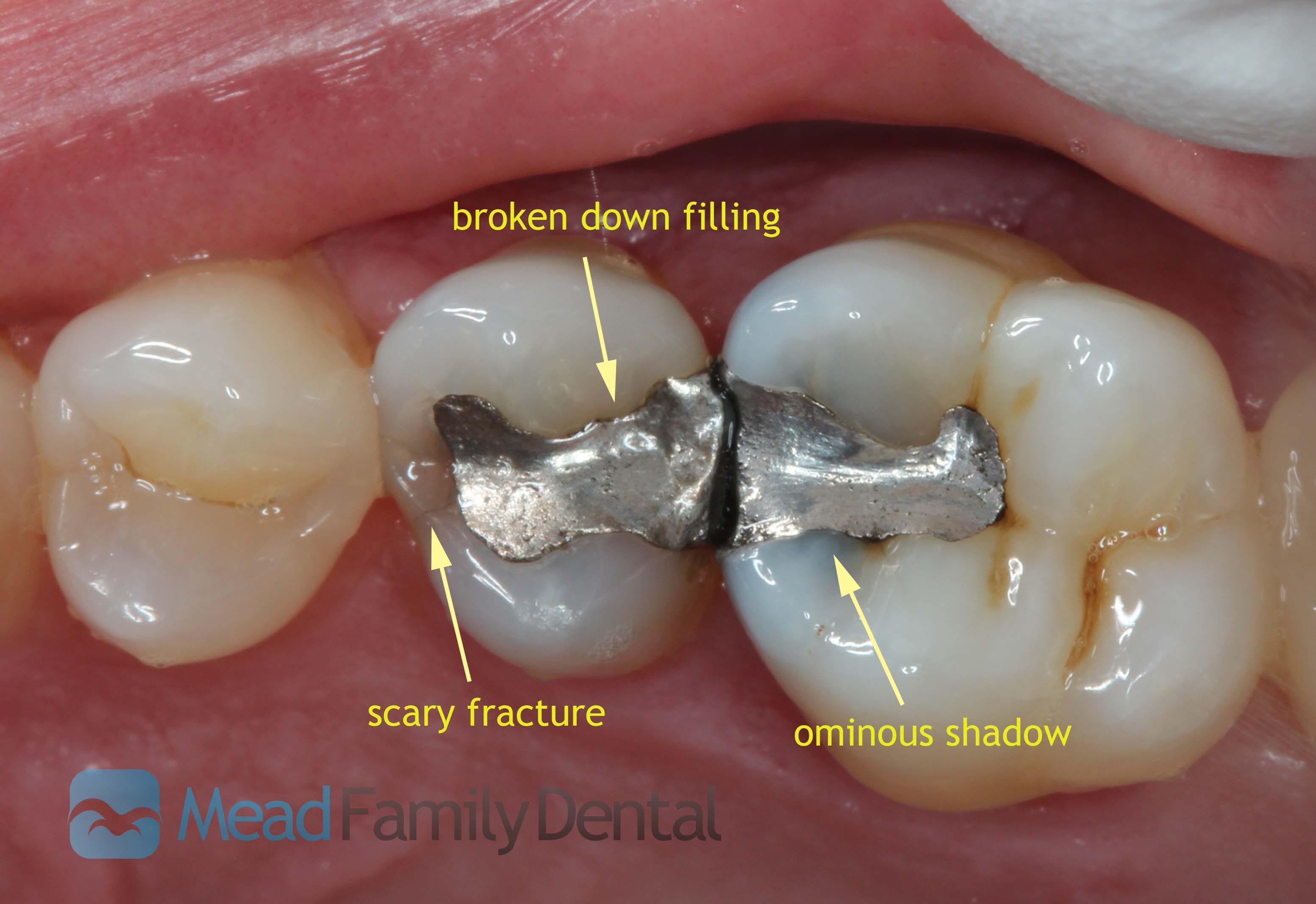 Tooth cavity filling always interesting what you can find when you tooth cavity filling always interesting what you can find when you type in surgery and other solutioingenieria Choice Image