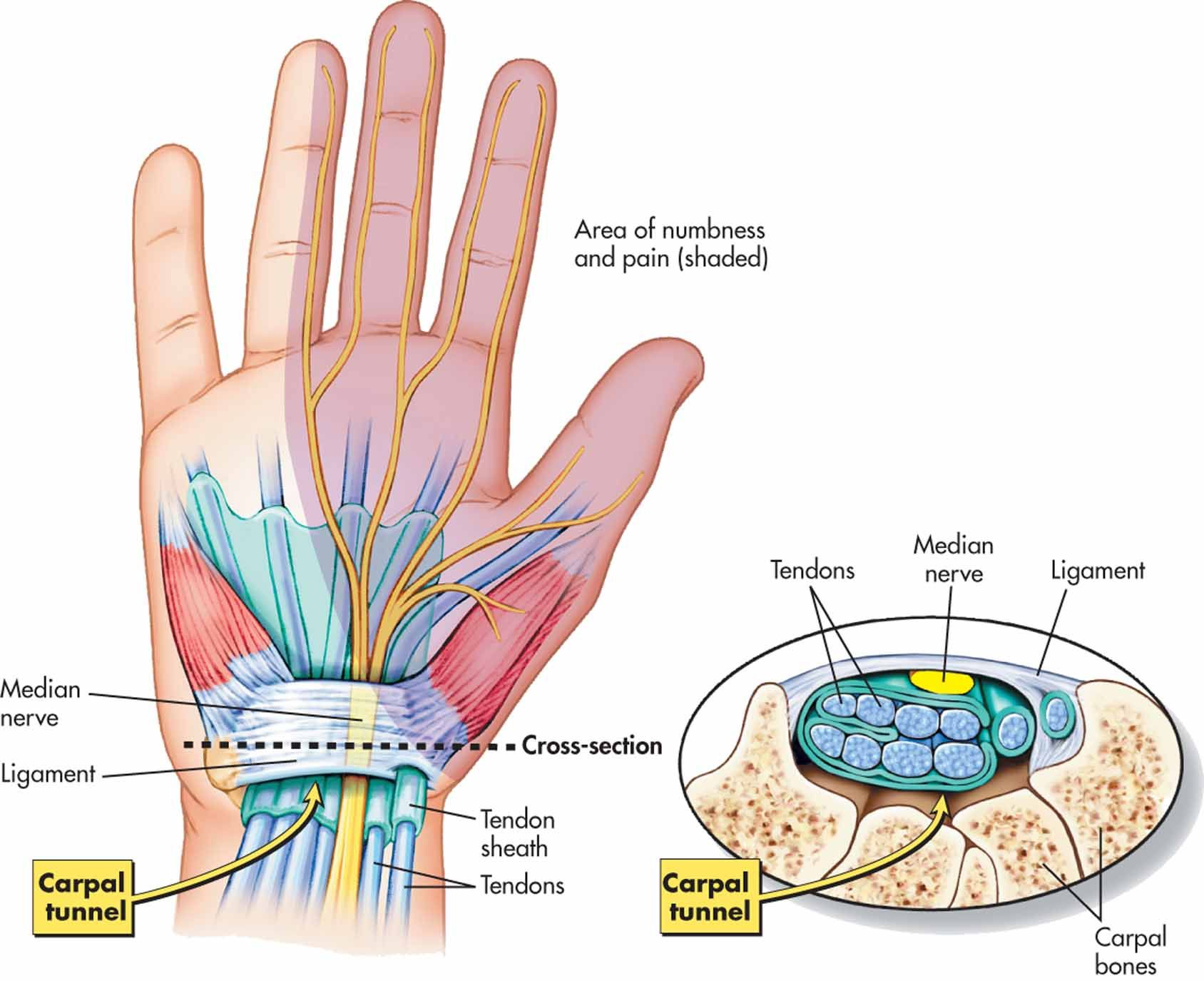 carpal tunnel #anatomy | Arm Hand Wrist | Pinterest | Carpal tunnel ...