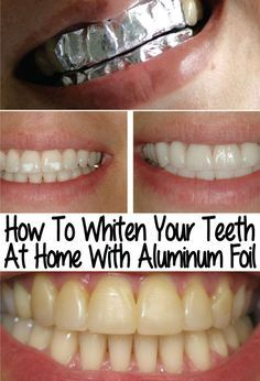 Home Teeth Whitening Helps You A Lot When You Urgently Need To Get