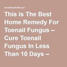 How to Get Rid of Foot Fungus | Health | Toenail fungus cure ...