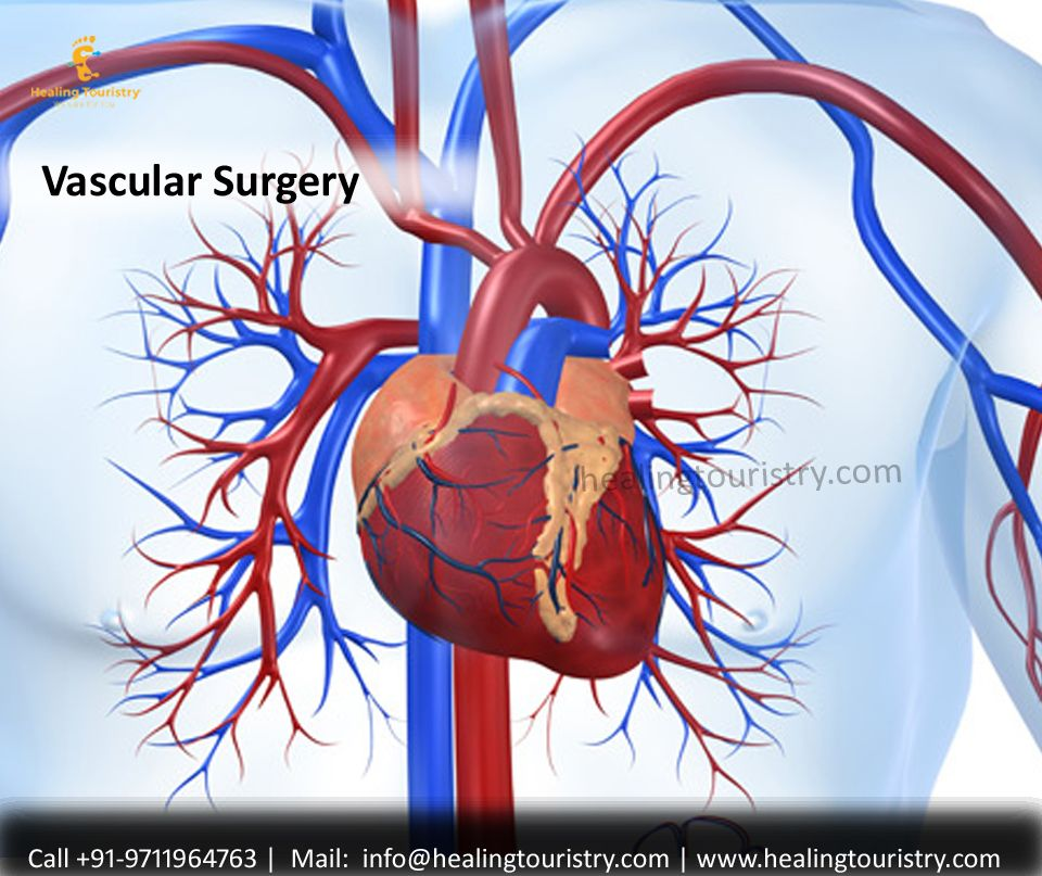 Learn everything you need to know about vascular surgery