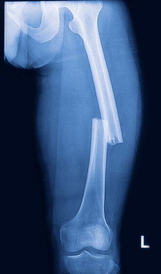 Transverse Fracture In Hip Bone Femur Bone X Ray Anatomy Note