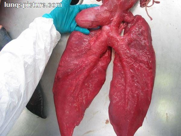 Real Lungs Images RLI10 | HealthSanaz | Lunges