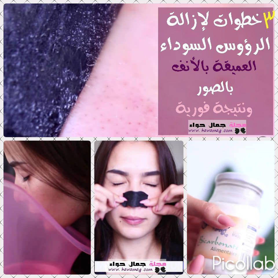 بالصور إزالة الرؤوس السوداء العميقة بالأنف فى 3 خطوات ونتيجة فورية Beauty Magazine Beauty Round Sunglasses