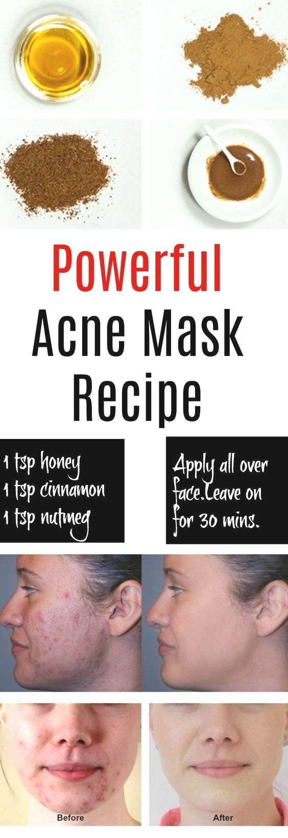 Home Remedies For Pimples And Blackheads For Oily Skin Best Home