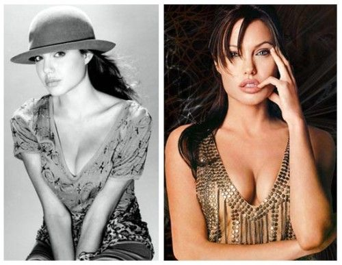 Angelina Jolie Breast Implant Before After Photo 500x387 Angelina