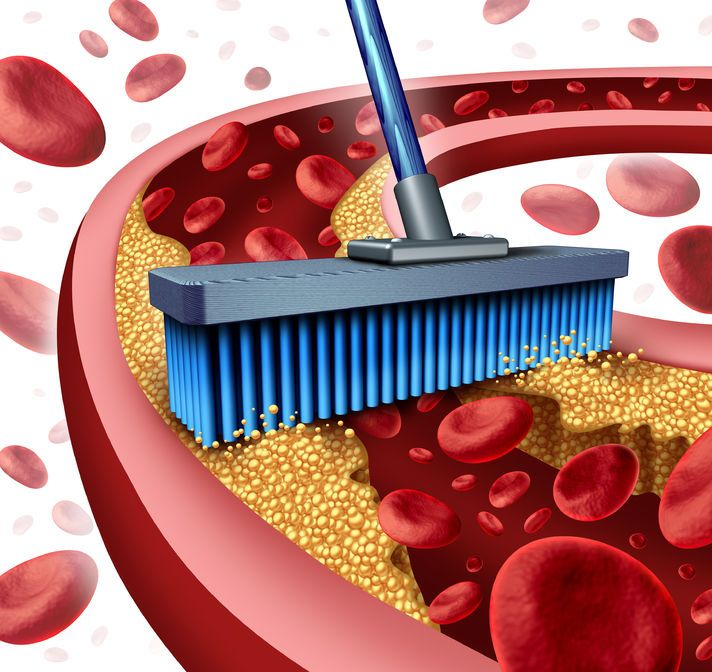 Top food for clean and healthy arteries