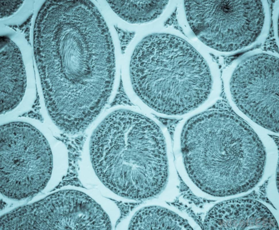 What Is the Structure of a Bacterial Cell? (with pictures