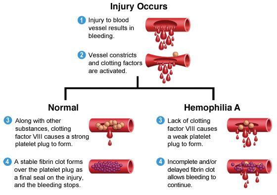 Hemophilia Blood Cells Clotting