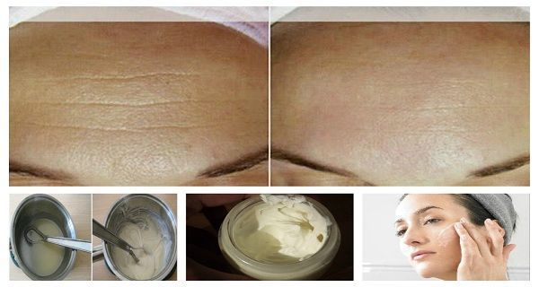 DIY Face Masks  : Wrinkles normally appear as a result of the natural aging process which inevitab