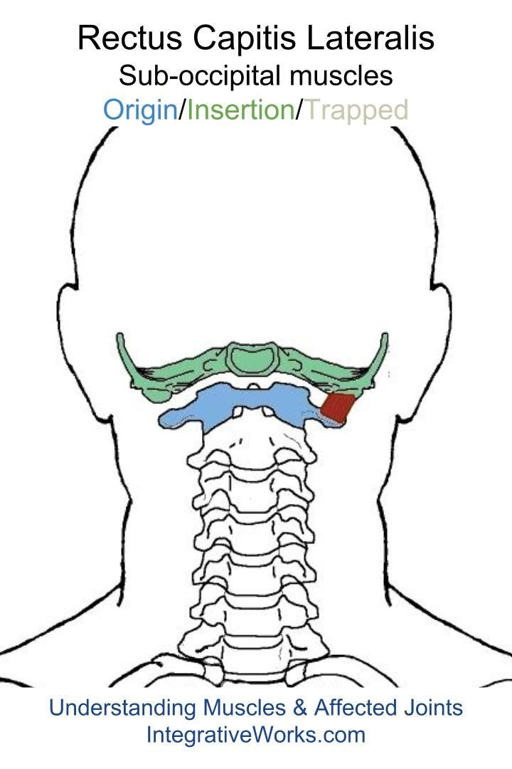 Understanding Trigger Points Pain In The Base Of The Head With