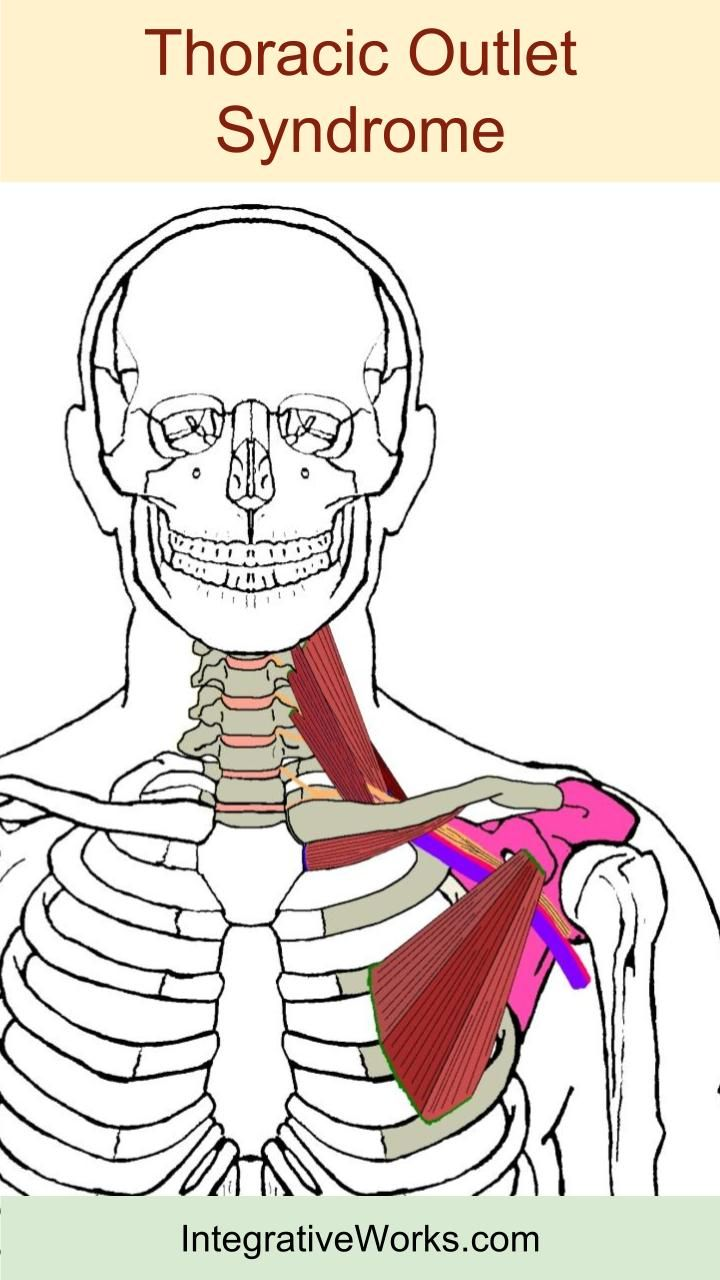 Thoracic Outlet Syndrome Pain Pattern Amazing Design Inspiration