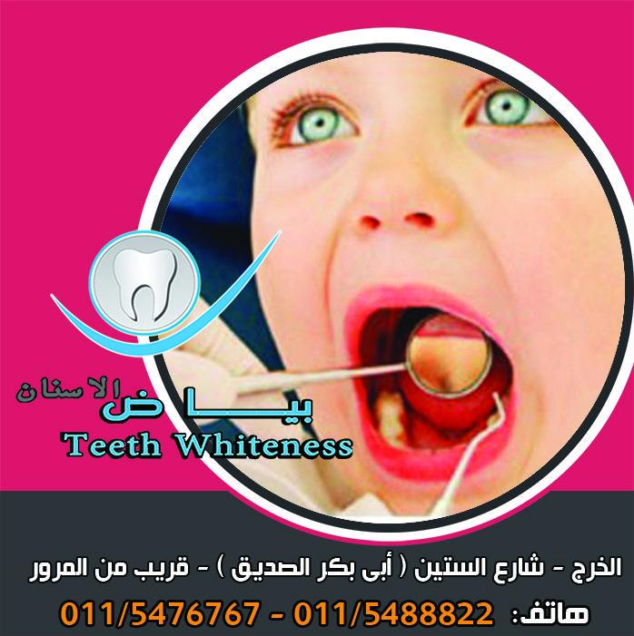 أقسام أجهزة تقويم الأسنان تقويم الأسنان الثابت وهو عبارة عن جهاز يتم تثبيته بشكل دائم طيلة مد ة التقويم ثم ي نزع من خلال الطبيب المختص بعد الحصو Teeth