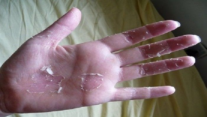 You Have Peeling Skin On The Hands Here Is What You Need To Do