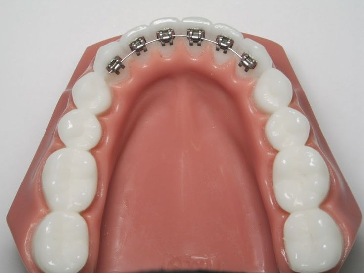 Did you know you can put braces on the back of your teeth ...