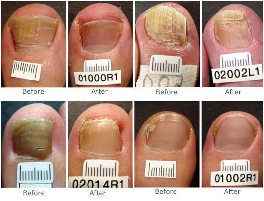 Cool Nail Art Images 2012 Small Nail Polish For Healthy Nails Clean Sheer Tint Nail Polish Exclusive Nail Art Old Safe Gel Nail Polish WhiteNail Art Design Ideas For Beginners Severe Nail Fungus Treatment   Emsilog