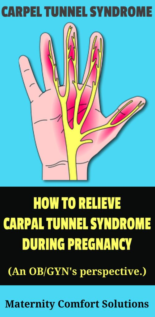 Pin on Pregnancy - Carpal Tunnel Syndrome