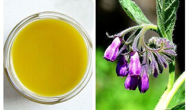 Remediu natural pentru durerile musculare și articulare - Doza de Sănătate