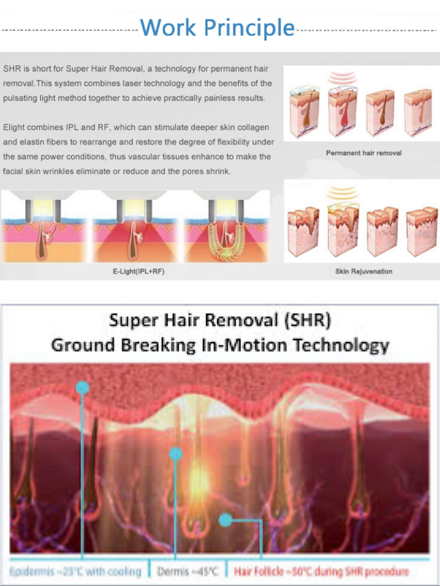 What Is Super Hair Removal Ipl Super Hair How To Remove