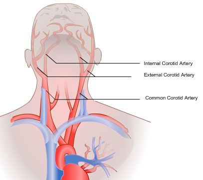 Image result for common carotid artery | Anatomy | Pinterest