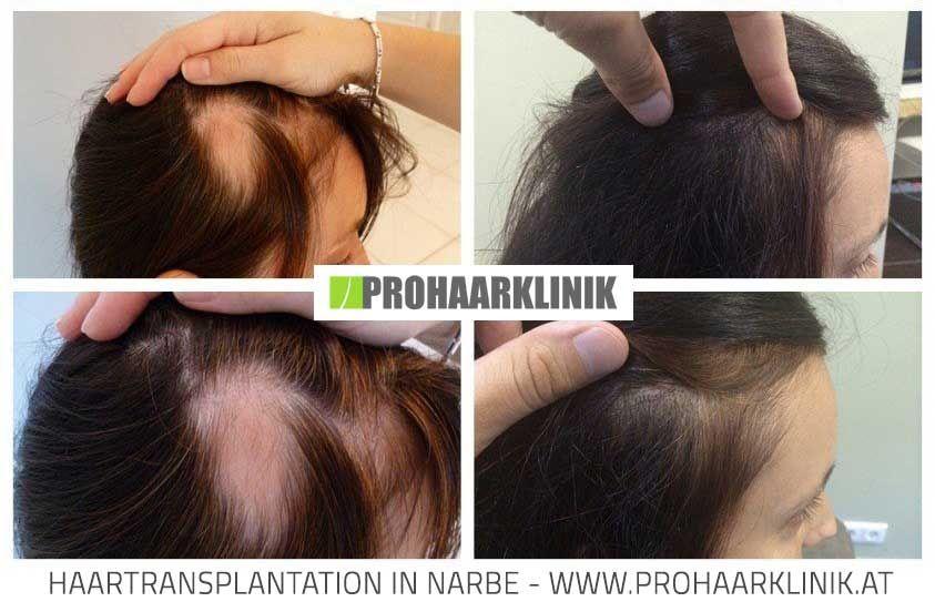 haartransplantation frauen vorher nachher haartransplantation