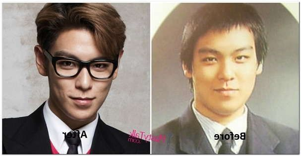 Big Bang Plastic Surgery Before After Parenting Tips Advice
