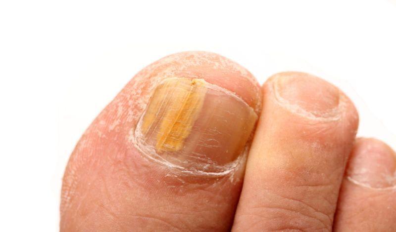 toenail fungus | Toenail Fungus Polish | Pinterest | Warning signs ...