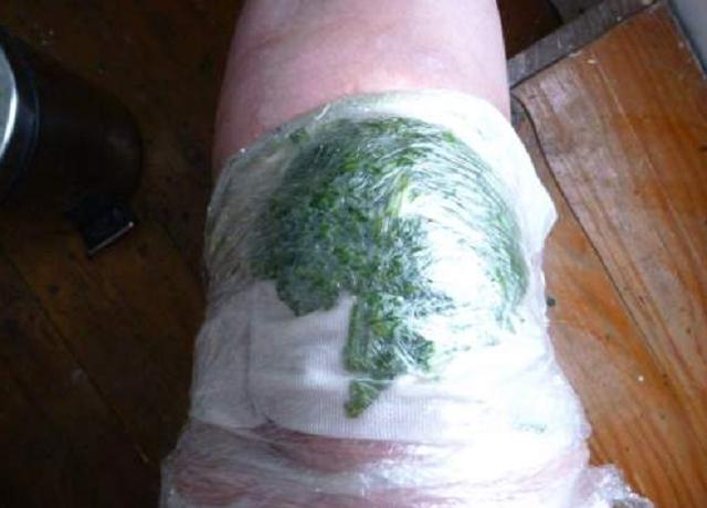 conuri pentru artrită decât pentru a trata)
