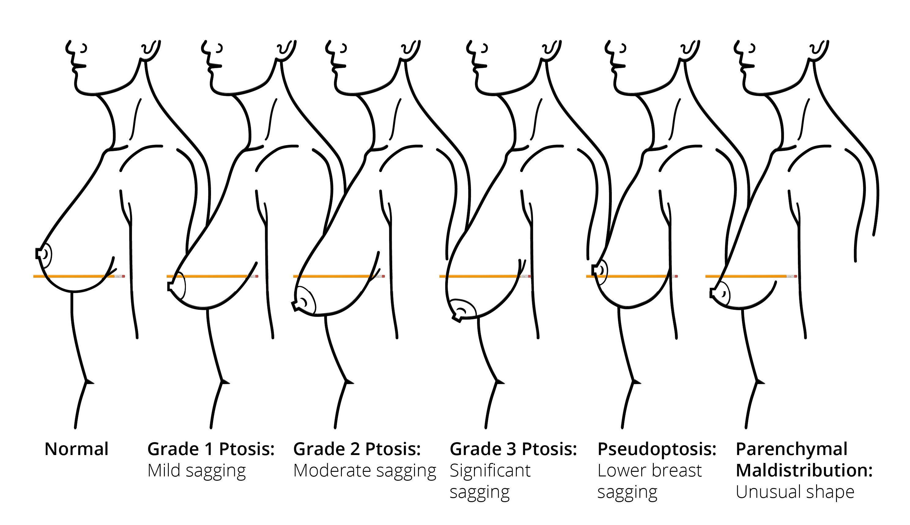 9d5e6be571866 Image result for tubular breasts