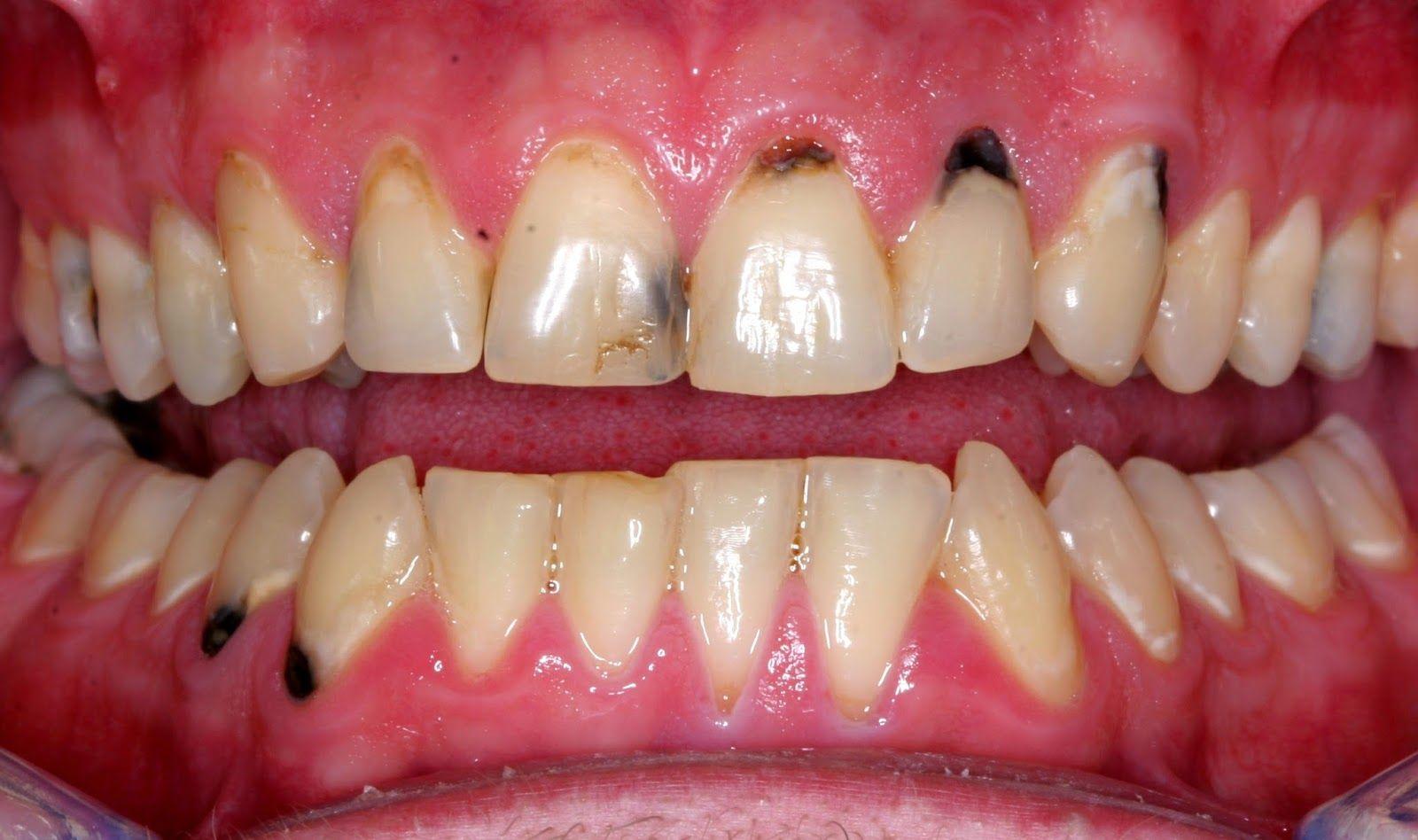 Pin On Teeth Cavities Remedies