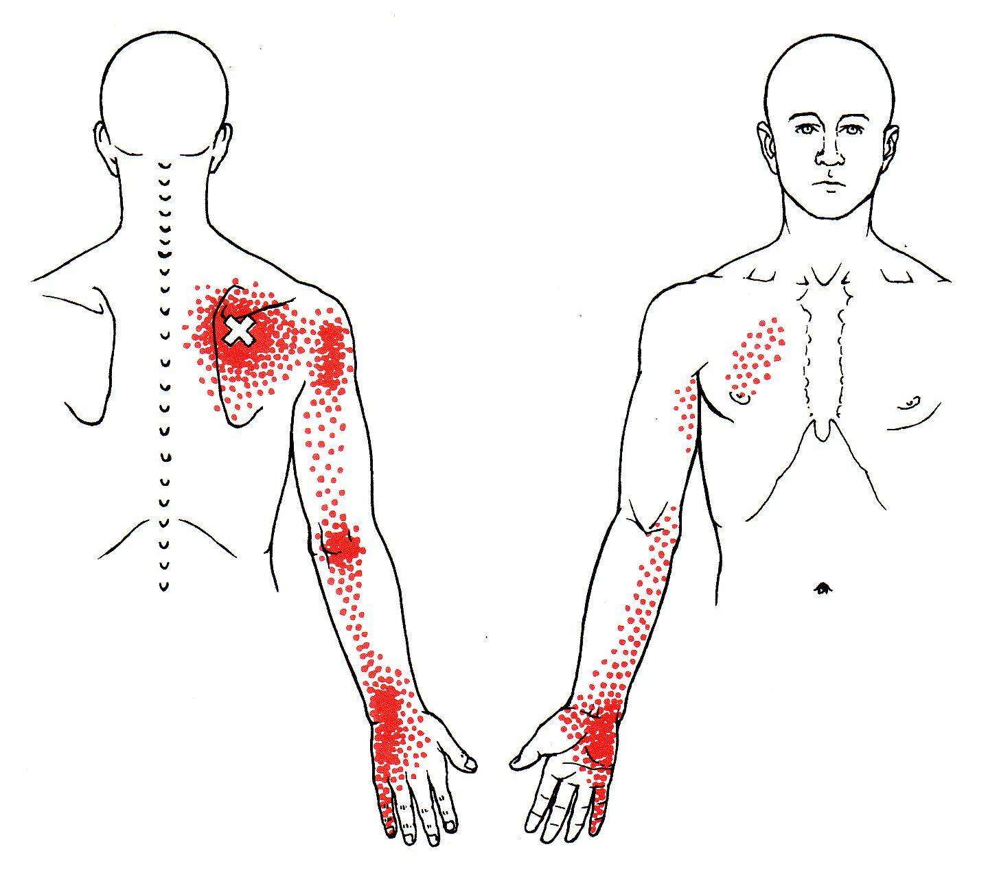 Hinterer Oberer Sägeblattmuskel | The Trigger Point & Referred Pain ...
