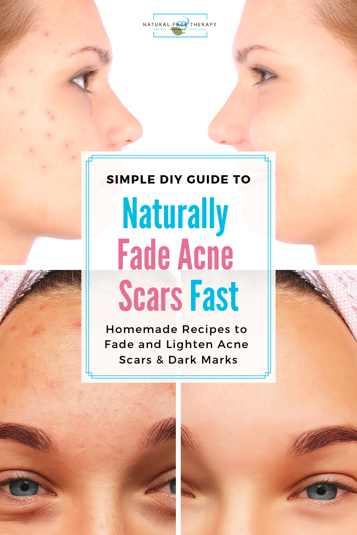 how to reduce back acne naturally
