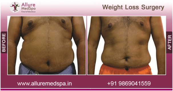 Gastric Bypass Procedure Is Performed With Laparoscopic Keyhole