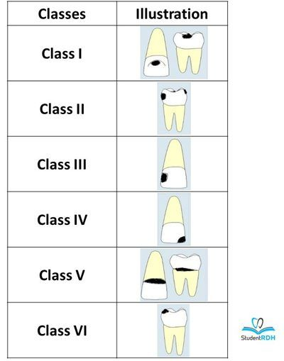 Must-know classifications of dental caries for the national dental hygiene boards - DentistryIQ #dentalassistant